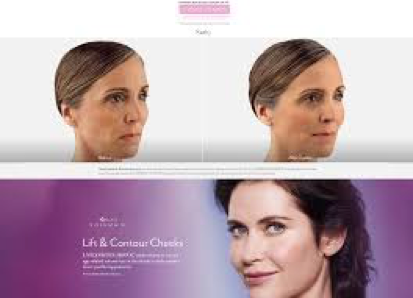 Juvederm Voluma at Skin Deep Medical Aesthetics